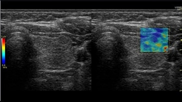 2D Shear Wave, Elastography in Thyroid, 9-LD