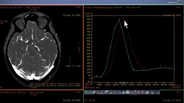 CT Perfusion 4D Radiology Imaging Software Video