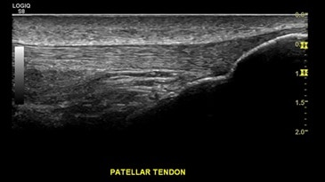 Patellar Tendon, ML6-15-D