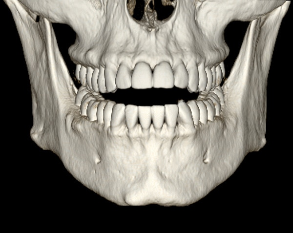 advanced visualization dentascan.